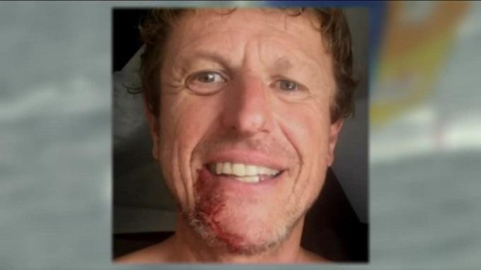 Jean-Pierre Dick se soigne le menton avec des agrafes — Vendée Globe